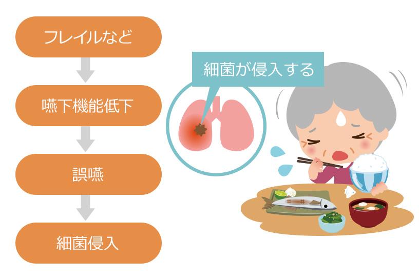 高齢者の肺炎は誤嚥により起こることも多い!呼吸器疾患をお持ちの方は急性増悪に至ることも!