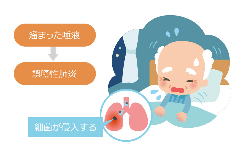 病院内や医療介護施設でケアを受けている方にも肺炎は起こりやすい