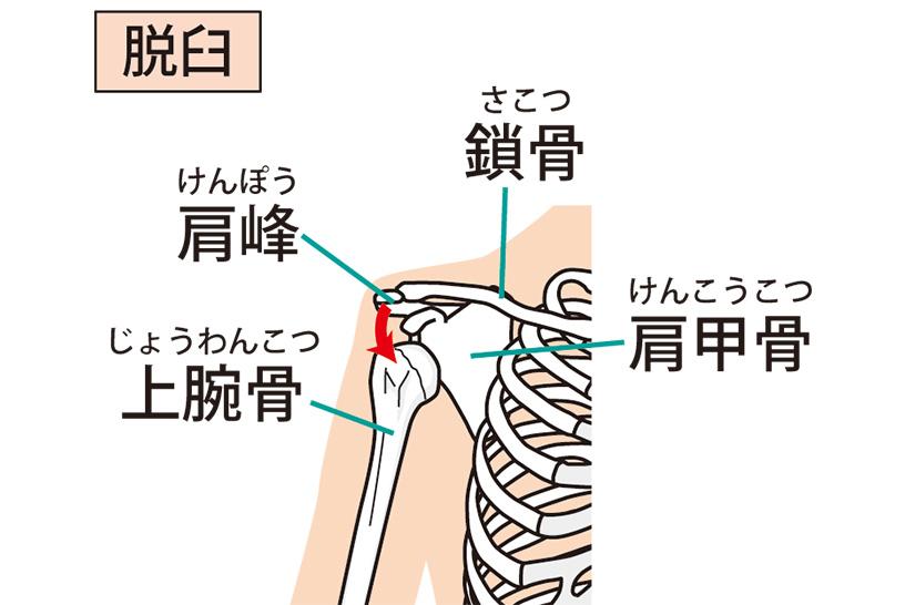 肩関節脱臼が再発しやすい理由