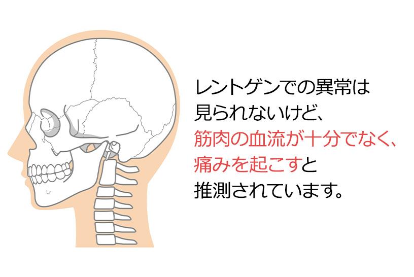 寝違えは検査や画像での異常は見られないが、首を動かすことが困難となる症状