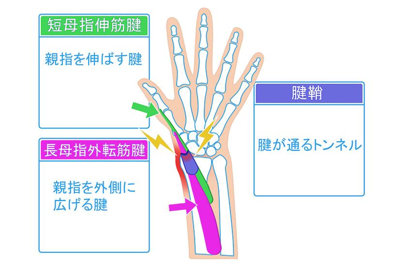 腱鞘炎の痛みは、腱と鞘(さや)の摩擦が原因!