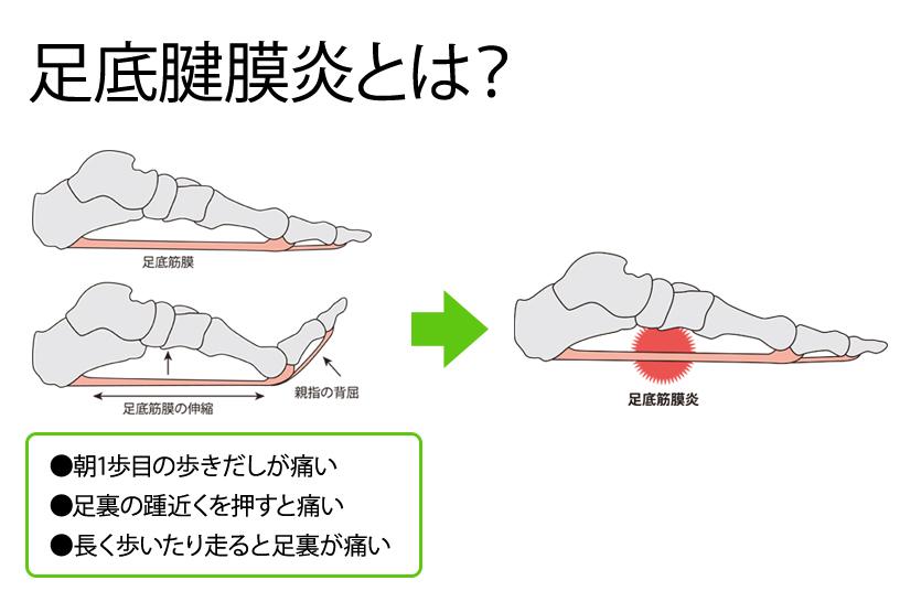 足底腱膜炎(そくていけんまくえん)とは?