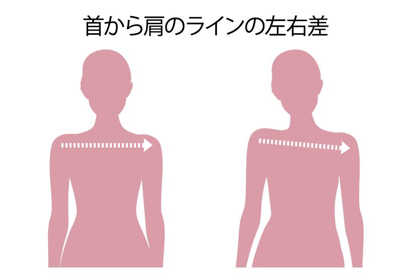 首から肩のラインの左右差