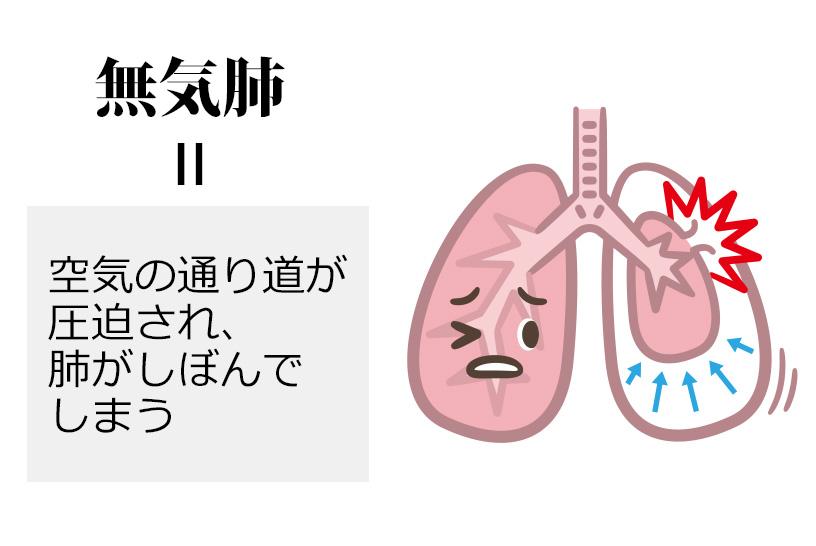無気肺は呼吸困難や、血液中の酸素濃度が低くなる