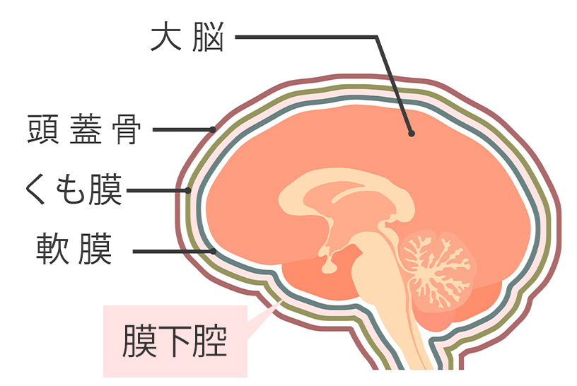 脳内の構成図  /></p> <p>突然起こる脳卒中の一つとしてくも膜下出血の名前を聞かれる方も多いのではないでしょうか。<br /> くも膜下出血はどんな病気なのか、原因は何かを解説します。</p> <h3>●くも膜下出血は、脳内のくも膜下腔に起こる出血のこと</h3> <p>脳は軟膜(なんまく)という膜に包まれています。<br /> さらにそれを包むのがくも膜です。<br /> 軟膜とくも膜の間は、脳脊髄液と呼ばれる液体で満たされています。<br /> その部位を膜下腔といいます。<br /> <span>くも膜下出血は、この膜下腔で出血を起こした状態をいいます。</span><br /> ケガなどの外傷や脳出血の血液が、くも膜下腔に及んだものは除外されます。<br /> その場合には頭蓋内出血と呼ばれ、くも膜下出血と区別されます。</p> <h3>●くも膜下出血の一番の原因は脳動脈瘤の破裂によるもの</h3> <p><span>くも膜下出血の原因の50〜80%は脳動脈瘤の破裂によるもの、くも膜下出血の発症原因の5〜10%を占める脳動静脈奇形によるものがあります。</span><br /> 脳動脈瘤破裂は40〜60歳の働き盛りの世代に多く、脳動静脈奇形は若い方でも発症します。<br /> くも膜下出血は、原因とどの血管に破裂などの損傷があったかがとても重要です。<br /> 原因を探し、必要によって手術などの処置をとります。</p> <h2><span id=