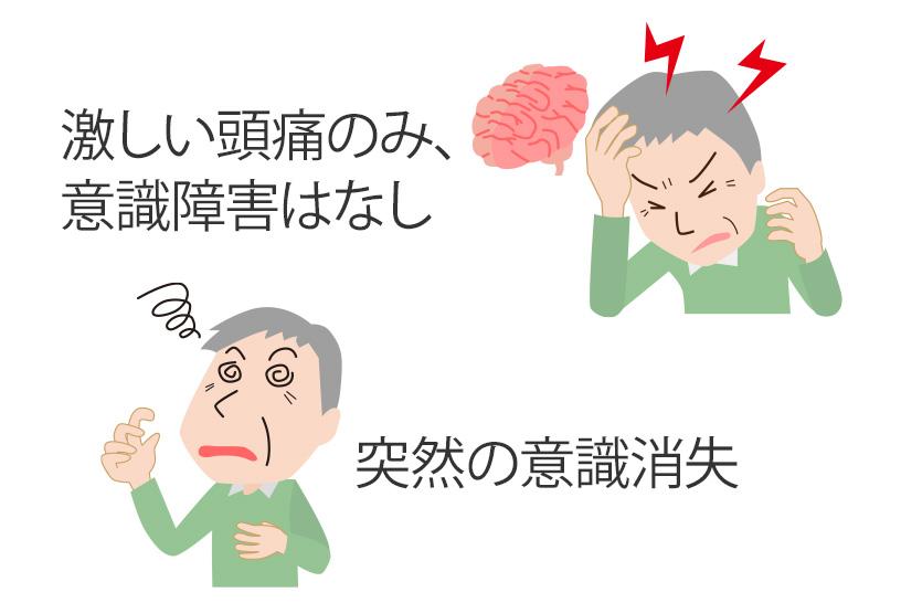 くも膜下出血の初期症状
