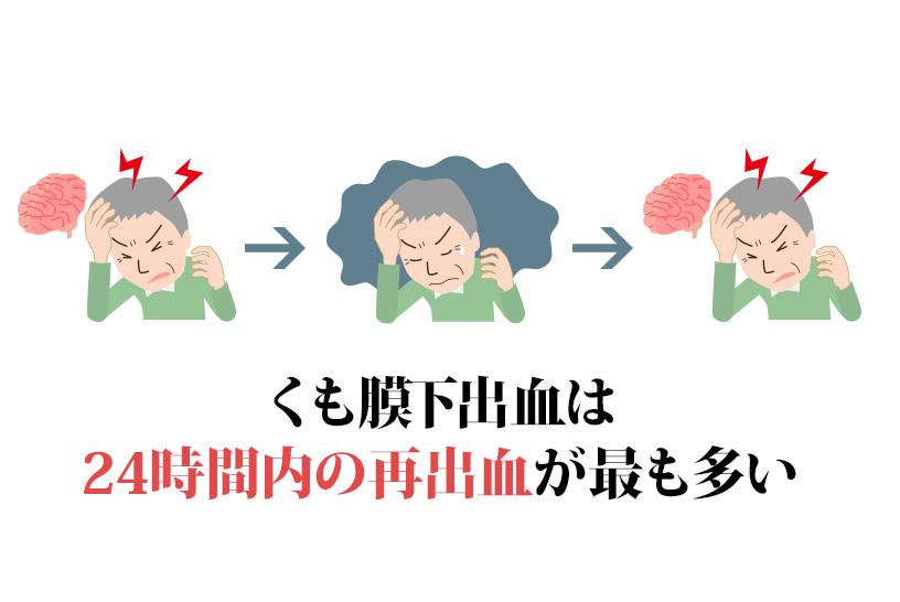 くも膜下出血は24時間以内の再出血が最も多い
