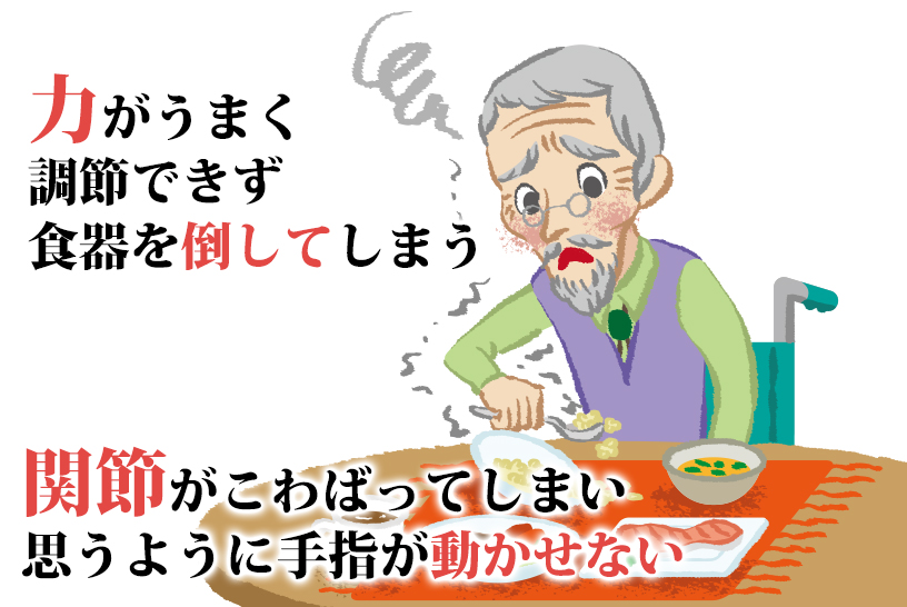 関節リウマチの方が感じやすい食事の難しさとは?