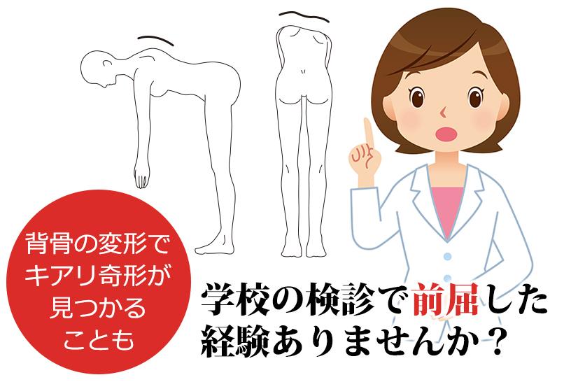 キアリ奇形は高確率で脊髄空洞症を併発する。ほかに合併しやすいものは水頭症や側湾症