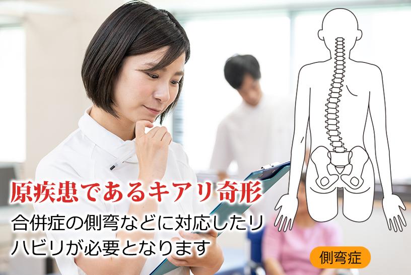 キアリ奇形におけるリハビリ対象となる症状とリハビリ