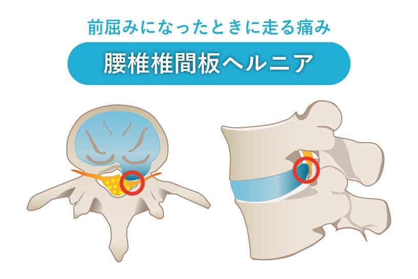 前屈みになったときに走る痛み 腰椎椎間板ヘルニア