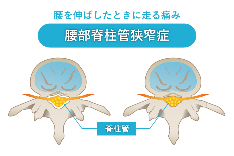 腰を伸ばしたときに走る痛み 腰部脊柱管狭窄症