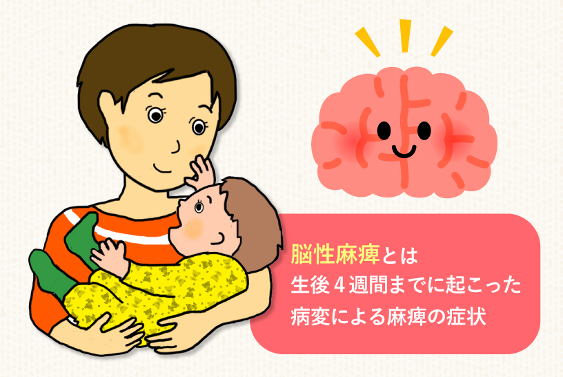 脳性麻痺とは生後4週間までに起こった病変による麻痺の症状