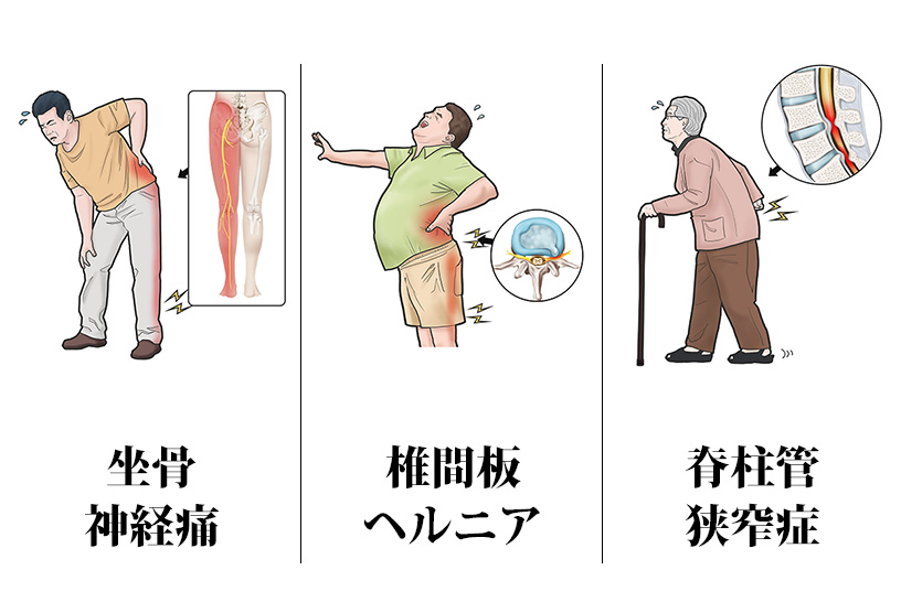 坐骨神経痛,椎間板ヘルニア,脊柱管狭窄症