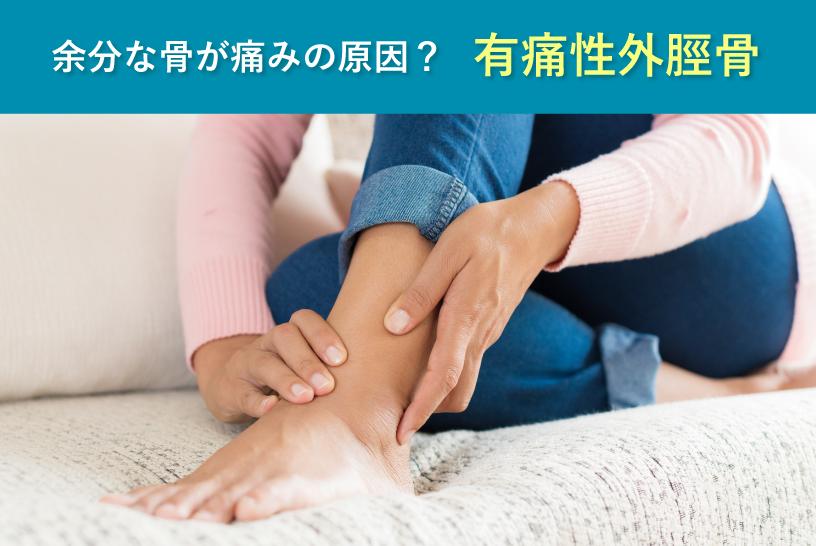 余分な骨が痛みの原因? 有痛性外脛骨