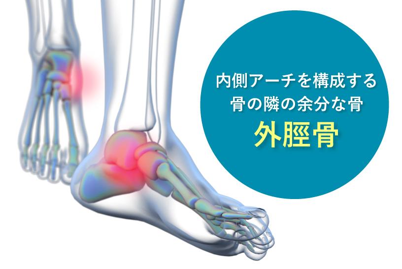 内側アーチを構成する骨の隣の余分な骨 外脛骨