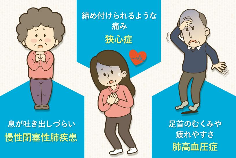 慢性閉塞性肺疾患・狭心症・肺高血圧症