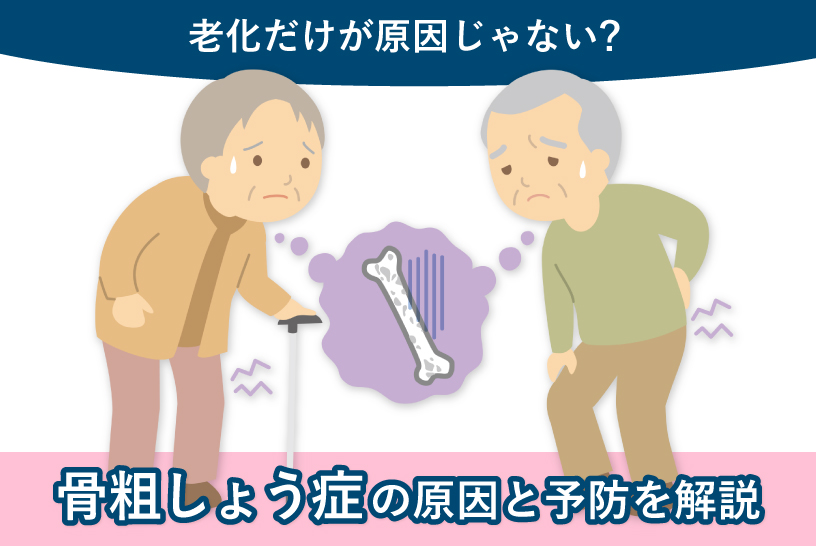 老化だけが原因じゃない? 骨粗しょう症の原因と予防を解説